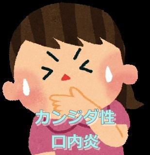 カンジダ性口内炎 画像 写真
