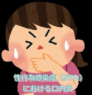 性行為感染症(STD)における口内炎 画像 写真
