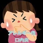 アレルギー性口内炎の原因、症状 治療・治し方 薬【画像・写真】