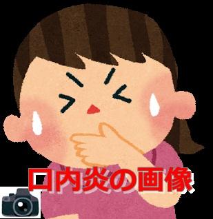 口内炎の画像(口内写真)