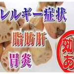れんこん NHKあさイチ 花粉症・アレルギー・ぜんそくに効果効能