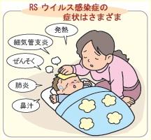 RSウィルス 症状