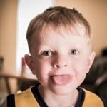 舌の裏、舌の先に出来た口内炎の治し方、原因 違いはある?