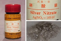 硝酸銀は口内炎治療に有効?危険?