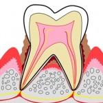 口内炎と歯周病の関係性(口臭も近い原因なんです)